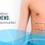 cirurgia plástica masculina: o fim do preconceito