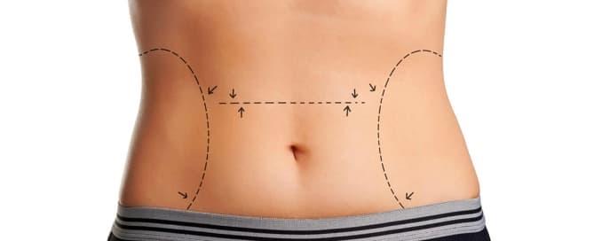 Abdominoplastia x miniabdominoplastia: entenda a diferença entre os procedimentos
