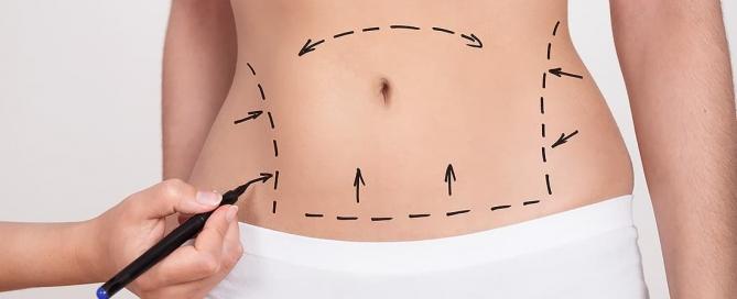 prepare-se para a sua abdominoplastia