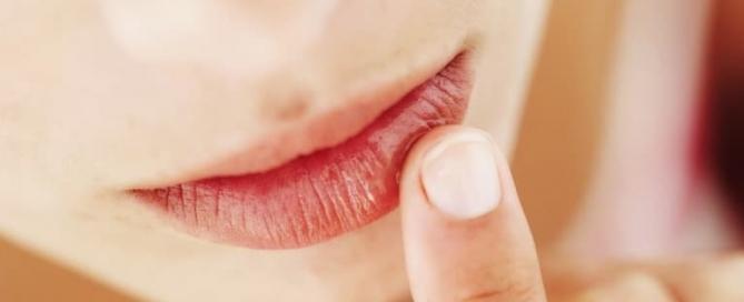 Popularidade do preenchimento labial