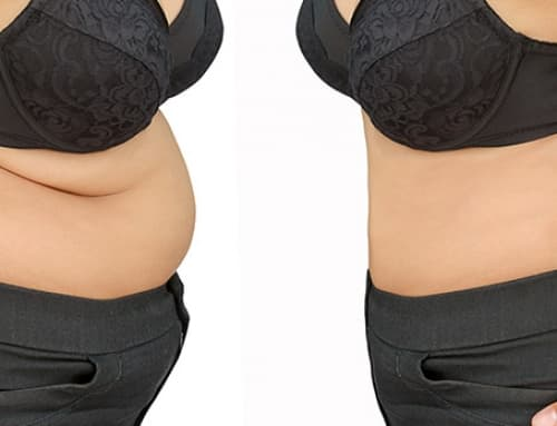 Fotos antes e depois da cirurgia plástica