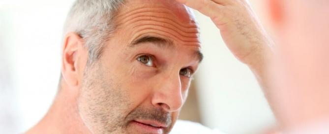 homem mostrando o resultado natural com o transplante capilar