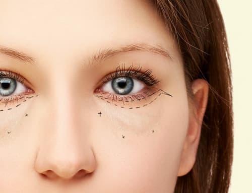 Maquiagem e blefaroplastia: descubra como se beneficiar