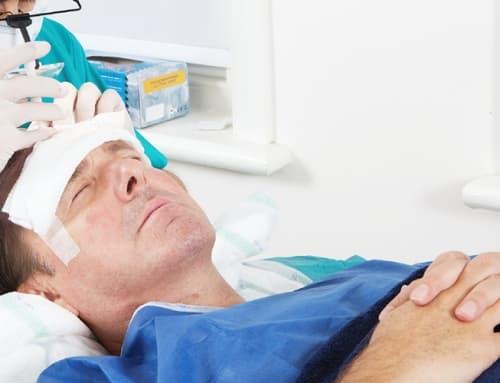 Como funciona uma cirurgia de transplante capilar?