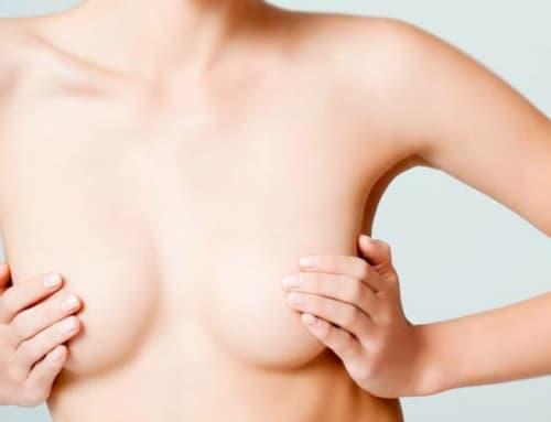 Qual a cirurgia plástica de mamas ideal para o meu caso?