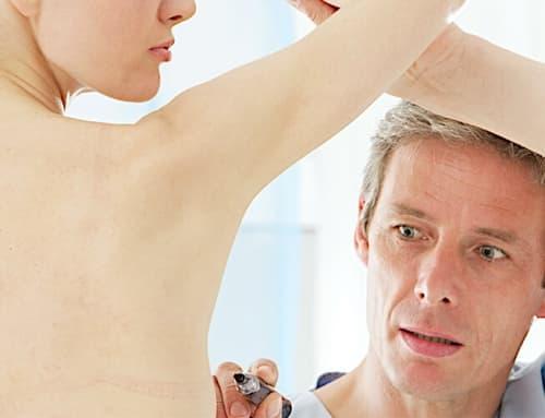 Conheça 3 tipos de mamoplastia e descubra qual é a indicada para você