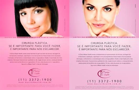 Campanhas cirurgia plástica