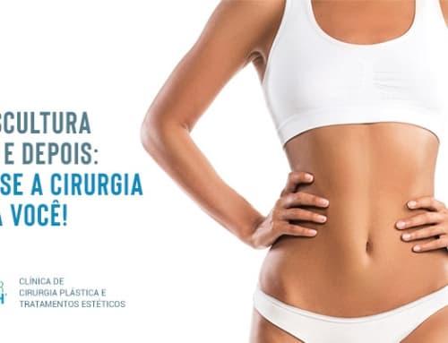 Lipoescultura antes e depois: saiba se a cirurgia é para você!