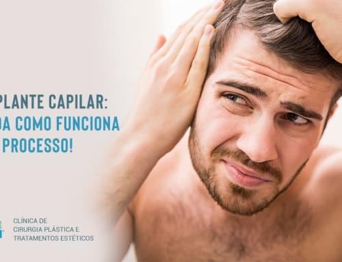 Transplante Capilar: entenda como funciona todo o processo!