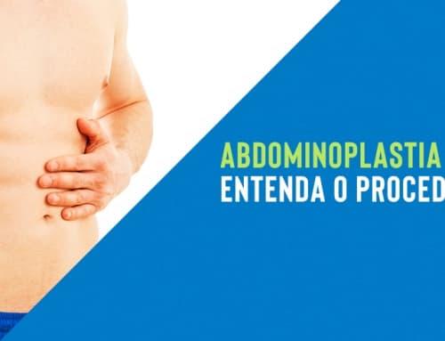 Abdominoplastia masculina: entenda o procedimento