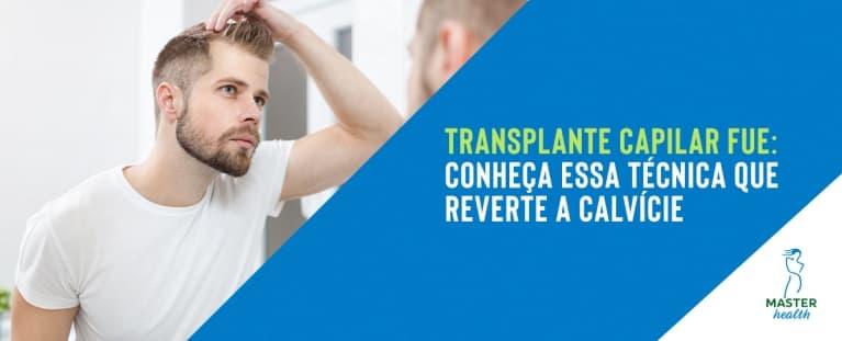Transplante capilar FUE: conheça essa técnica que reverte a calvície