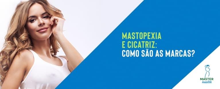 Mastopexia: Como fica a cicatriz da cirurgia que corrige a flacidez das mamas?