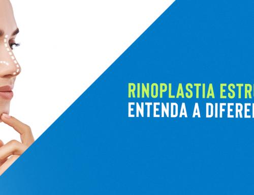 Rinoplastia estruturada: entenda a diferença!