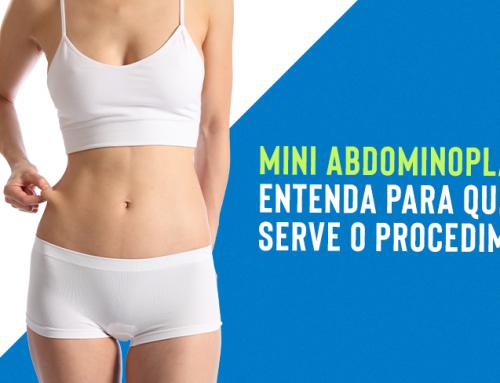 Mini abdominoplastia antes e depois: entenda para que serve o procedimento!