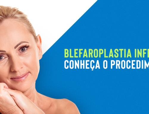Blefaroplastia inferior: conheça o procedimento