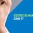 Cicatriz da mamoplastia