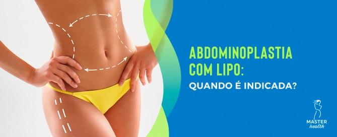 Abdominoplastia com lipo: quando é indicada?