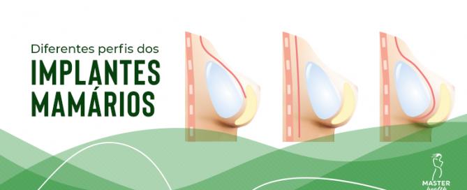 formatos e perfis de prótese de silicone