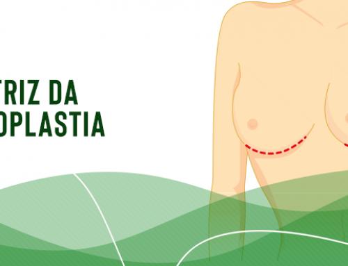 Quanto tempo demora para cicatrizar uma cirurgia de prótese de mama?