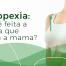 como é feita a mastopexia cirurgia que levanta a mama