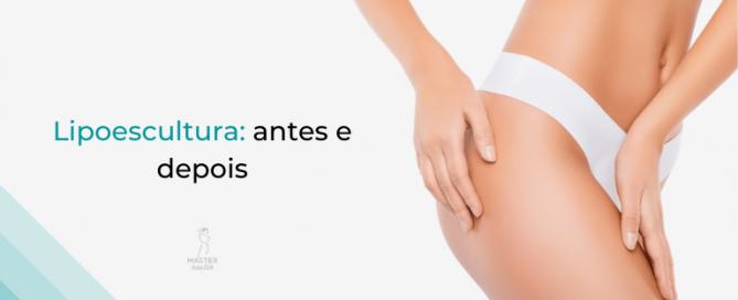 lipoescultura-01-master-health