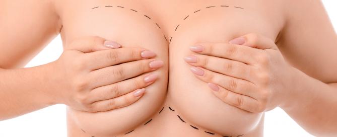 mamoplastia-de-aumento-master-health
