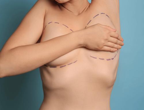 Mamoplastia redutora com prótese