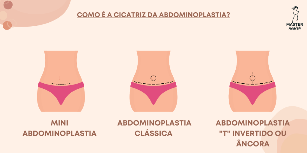 abdominoplastia-06-master-health.png
