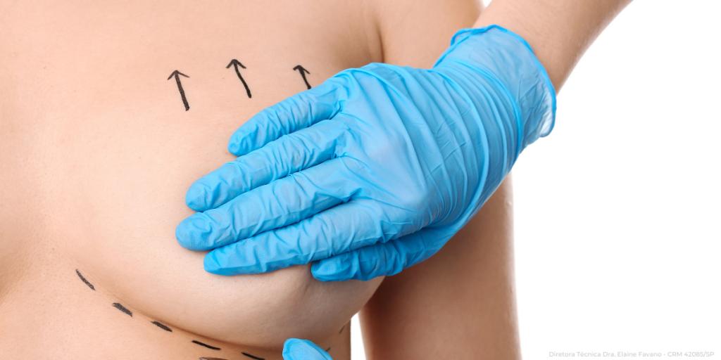 tipos-mamoplastia-01-master-health.