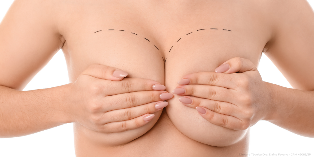 tipos-mamoplastia-02-master-health.