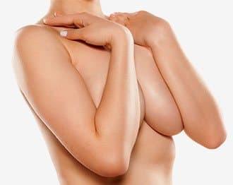 Procedimento Mamoplastia